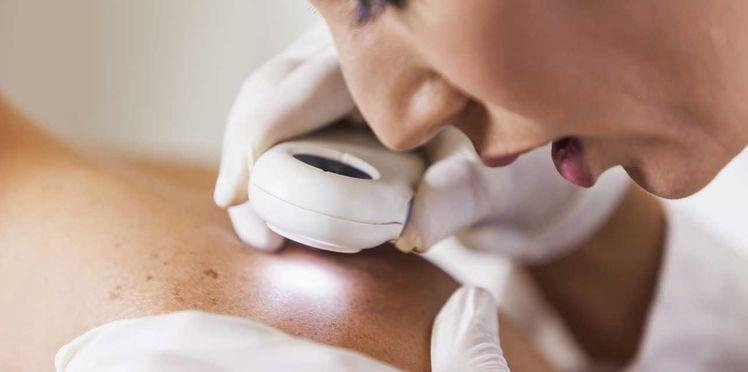 Les dermatologues peuvent aussi recevoir des patients en urgence